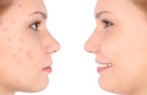Des remèdes contre l'acné